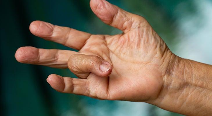 Pattanó ujj