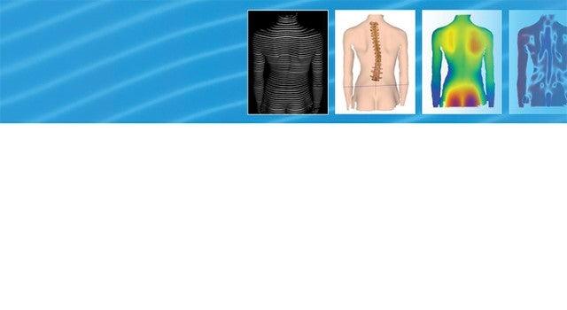 New equipment at Norton Neurosciences & Spine Rehabilitation Center